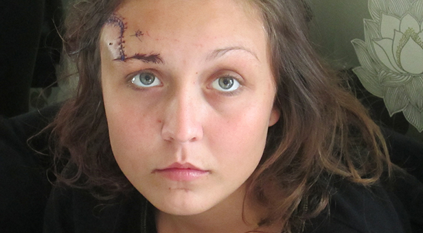 Serious assault head stitches