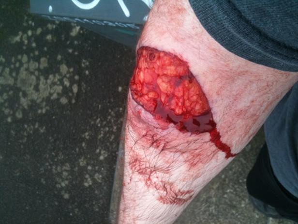 Dog-attack-injury