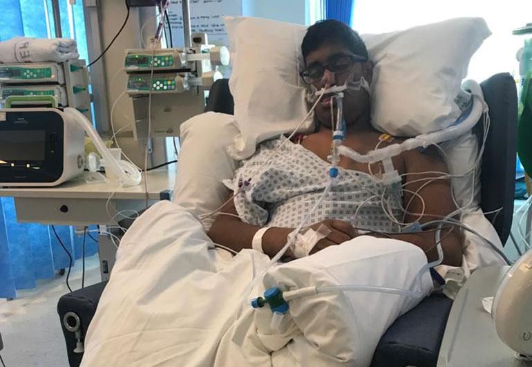 Student Ben de Souza - the sickest patient in the hospital after contracting meningitis B